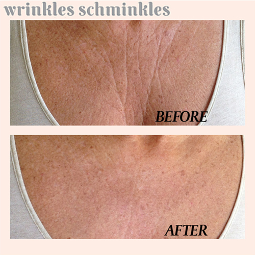 Wrinkles Schminkles is an overnight anti-aging skincare range of reusable 100% Medical Grade Silicone Pads for men and women...